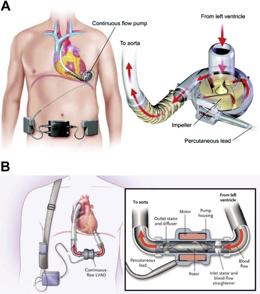 Fig. 1 - Left ventricular assist device - a tiny pump moving the blood in the human body